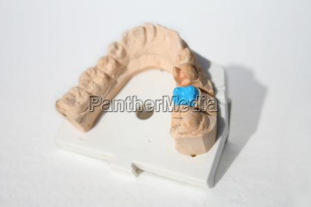 modelo mandibula inferior con preparacion