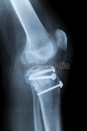 rodilla humana lateralmente de rayos x