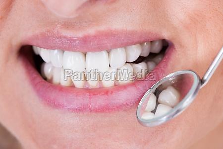 dentista examen del paciente