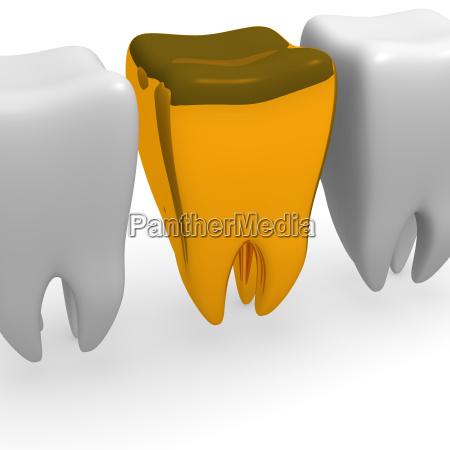 diente dorado