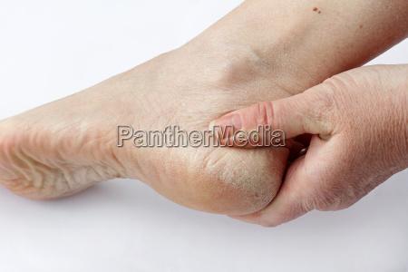 una mujer tiene la piel seca