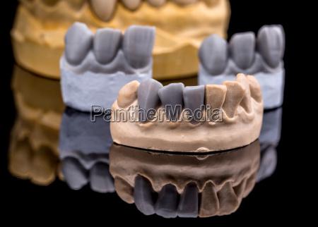 diente artificial