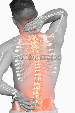 compuesto digital de la espina dorsal