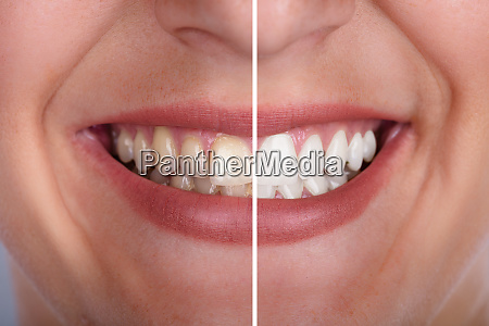 mujer risilla sonrisas boca dientes tratamiento