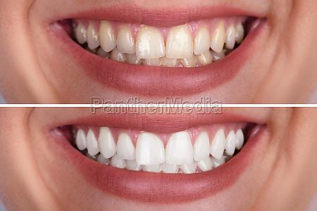 dientes de mujer antes y despues